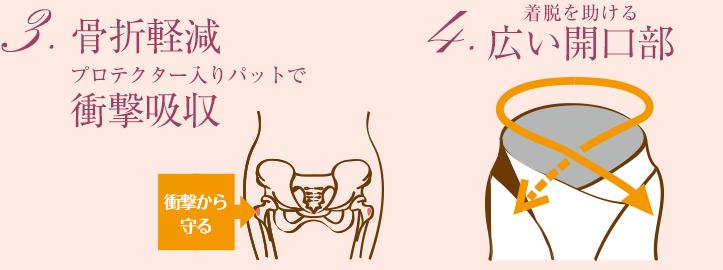 骨折軽減・広い開口部